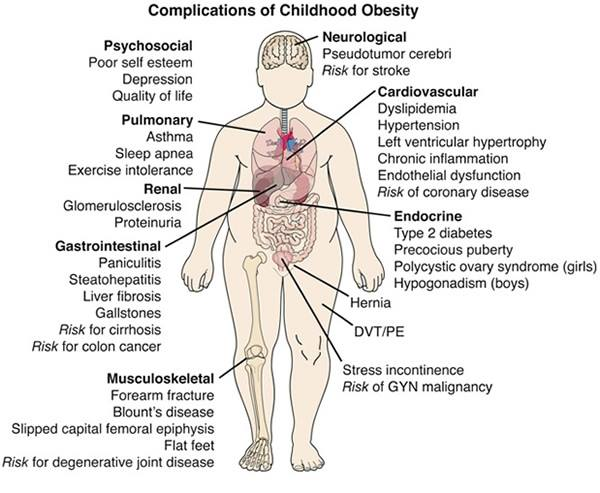Having obesity is inviting complications at later age